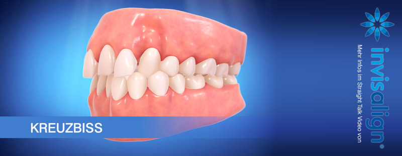 Invisalign Engstand